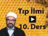 Tip 10-01
